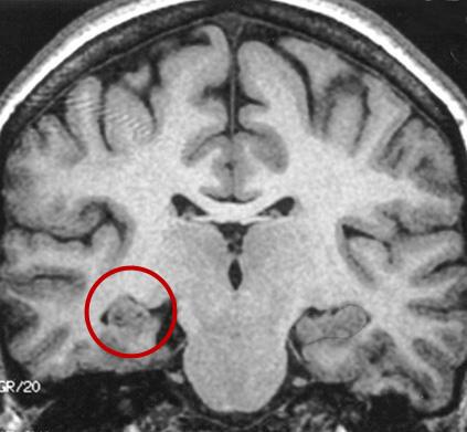 Atrofia de hipocampo é uma das causas da epilepsia.